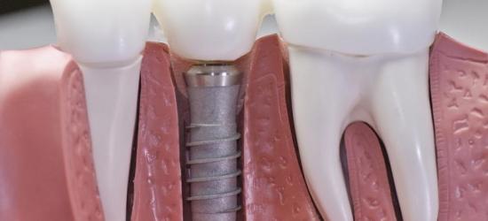 Что необходимо знать о зубных имплантантах?
