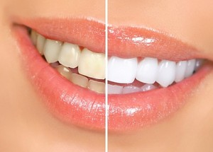 (RU) Какие продукты портят цвет и здоровье зубов.