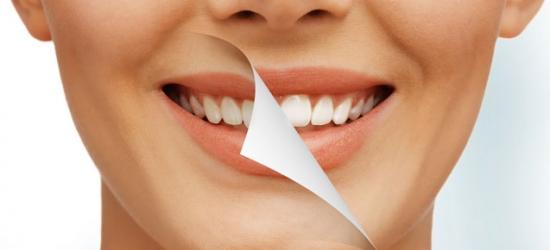 Эстетическое отбеливание и профессиональная чистка зубов