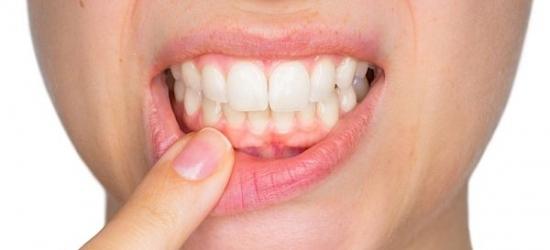 Диагностика и лечение зубного флюса