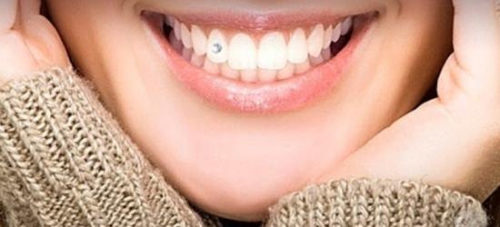 Драгоценности в зубах – старинное украшение